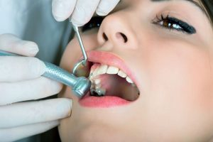 Exceptional Teeth Cleaning for a Healthy Smile