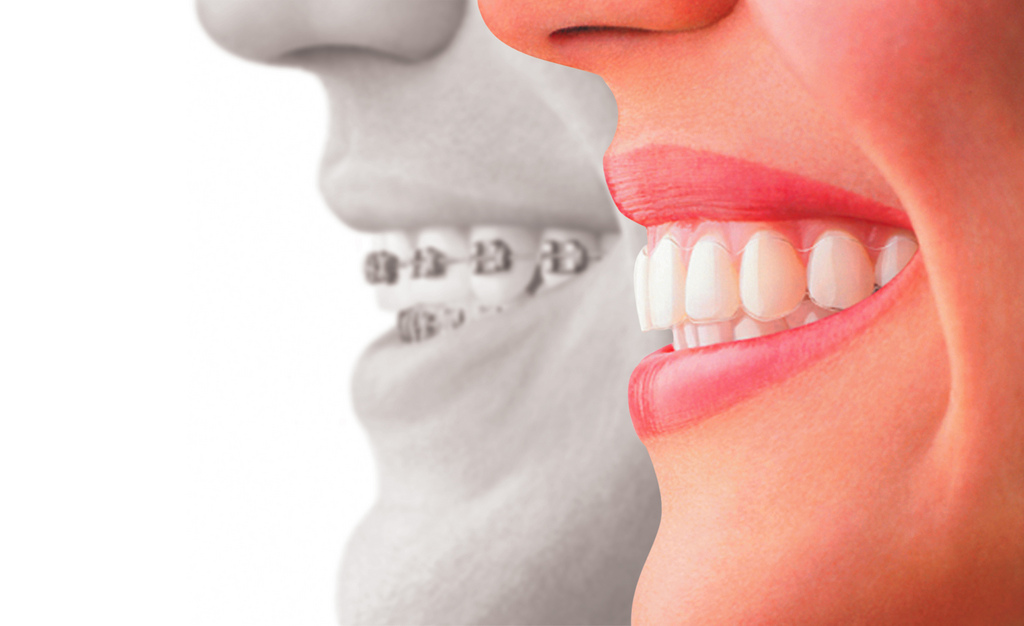 THE INVISALIGN ADVANTAGE
