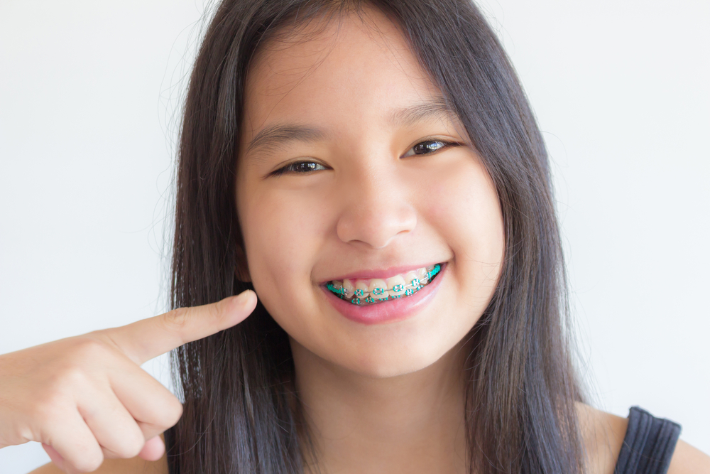 Brace for Braces – 6 Tips to Prepare Your Child for Braces